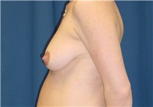 Breast Lift Before Photo by Ricardo Rodriguez, MD; Lutherville-Timonium, MD - Case 27028