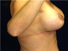 Breast Lift After Photo by Ricardo Rodriguez, MD; Lutherville-Timonium, MD - Case 27029