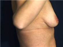 Breast Lift Before Photo by Ricardo Rodriguez, MD; Lutherville-Timonium, MD - Case 27029