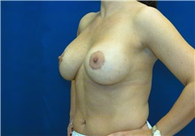 Breast Lift After Photo by Ricardo Rodriguez, MD; Lutherville-Timonium, MD - Case 27030
