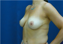 Breast Lift Before Photo by Ricardo Rodriguez, MD; Lutherville-Timonium, MD - Case 27030