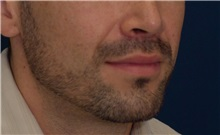 Dermal Fillers After Photo by Ricardo Rodriguez, MD; Lutherville-Timonium, MD - Case 27031