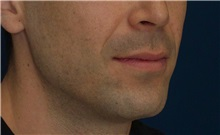 Dermal Fillers Before Photo by Ricardo Rodriguez, MD; Lutherville-Timonium, MD - Case 27031