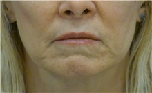 Dermal Fillers After Photo by Ricardo Rodriguez, MD; Lutherville-Timonium, MD - Case 27032