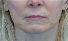 Dermal Fillers Before Photo by Ricardo Rodriguez, MD; Lutherville-Timonium, MD - Case 27032