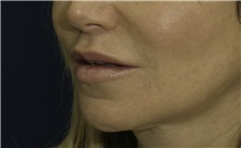 Dermal Fillers After Photo by Ricardo Rodriguez, MD; Lutherville-Timonium, MD - Case 27033