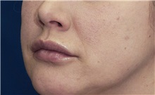 Dermal Fillers Before Photo by Ricardo Rodriguez, MD; Lutherville-Timonium, MD - Case 27034