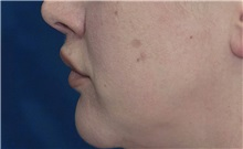 Dermal Fillers After Photo by Ricardo Rodriguez, MD; Lutherville-Timonium, MD - Case 27034