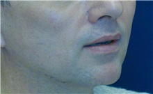 Dermal Fillers After Photo by Ricardo Rodriguez, MD; Lutherville-Timonium, MD - Case 27035