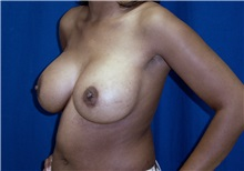 Breast Lift After Photo by Ricardo Rodriguez, MD; Lutherville-Timonium, MD - Case 27071