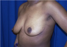 Breast Lift Before Photo by Ricardo Rodriguez, MD; Lutherville-Timonium, MD - Case 27071