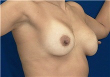 Breast Lift After Photo by Ricardo Rodriguez, MD; Lutherville-Timonium, MD - Case 27072