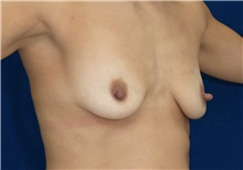 Breast Lift Before Photo by Ricardo Rodriguez, MD; Lutherville-Timonium, MD - Case 27072