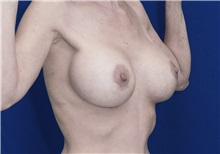 Breast Lift After Photo by Ricardo Rodriguez, MD; Lutherville-Timonium, MD - Case 27073
