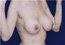 Breast Lift Before Photo by Ricardo Rodriguez, MD; Lutherville-Timonium, MD - Case 27073