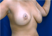 Breast Lift After Photo by Ricardo Rodriguez, MD; Lutherville-Timonium, MD - Case 27074