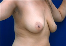 Breast Lift Before Photo by Ricardo Rodriguez, MD; Lutherville-Timonium, MD - Case 27074