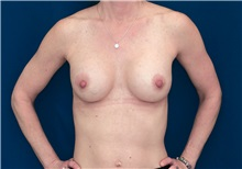 Breast Lift After Photo by Ricardo Rodriguez, MD; Lutherville-Timonium, MD - Case 27075