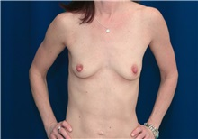 Breast Lift Before Photo by Ricardo Rodriguez, MD; Lutherville-Timonium, MD - Case 27075