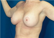 Breast Lift After Photo by Ricardo Rodriguez, MD; Lutherville-Timonium, MD - Case 27076