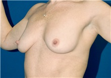 Breast Lift Before Photo by Ricardo Rodriguez, MD; Lutherville-Timonium, MD - Case 27076