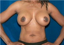Breast Lift After Photo by Ricardo Rodriguez, MD; Lutherville-Timonium, MD - Case 27077