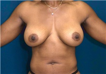 Breast Lift Before Photo by Ricardo Rodriguez, MD; Lutherville-Timonium, MD - Case 27077