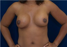 Breast Lift After Photo by Ricardo Rodriguez, MD; Lutherville-Timonium, MD - Case 27078