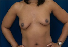 Breast Lift Before Photo by Ricardo Rodriguez, MD; Lutherville-Timonium, MD - Case 27078