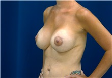 Breast Lift After Photo by Ricardo Rodriguez, MD; Lutherville-Timonium, MD - Case 27079
