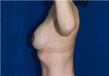 Breast Lift After Photo by Ricardo Rodriguez, MD; Lutherville-Timonium, MD - Case 27080