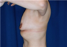 Breast Lift Before Photo by Ricardo Rodriguez, MD; Lutherville-Timonium, MD - Case 27080