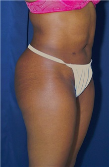 Buttock Implants After Photo by Ricardo Rodriguez, MD; Lutherville-Timonium, MD - Case 27088