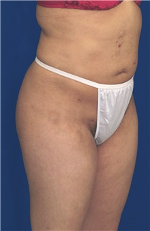 Buttock Implants After Photo by Ricardo Rodriguez, MD; Lutherville-Timonium, MD - Case 27089