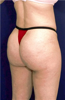 Buttock Implants After Photo by Ricardo Rodriguez, MD; Lutherville-Timonium, MD - Case 27090