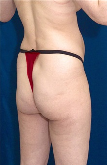 Buttock Implants Before Photo by Ricardo Rodriguez, MD; Lutherville-Timonium, MD - Case 27090
