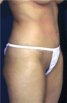 Tummy Tuck After Photo by Ricardo Rodriguez, MD; Lutherville-Timonium, MD - Case 27092