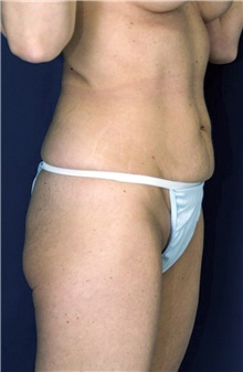 Tummy Tuck Before Photo by Ricardo Rodriguez, MD; Lutherville-Timonium, MD - Case 27092
