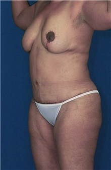 Tummy Tuck After Photo by Ricardo Rodriguez, MD; Lutherville-Timonium, MD - Case 27095