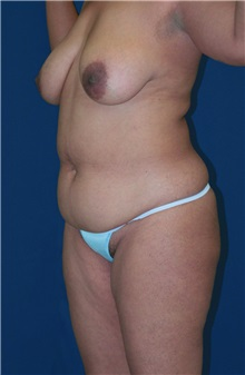 Tummy Tuck Before Photo by Ricardo Rodriguez, MD; Lutherville-Timonium, MD - Case 27095