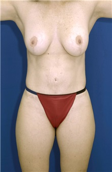 Tummy Tuck After Photo by Ricardo Rodriguez, MD; Lutherville-Timonium, MD - Case 27096