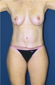 Tummy Tuck Before Photo by Ricardo Rodriguez, MD; Lutherville-Timonium, MD - Case 27096