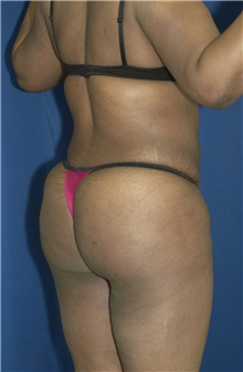 Buttock Implants After Photo by Ricardo Rodriguez, MD; Lutherville-Timonium, MD - Case 27100