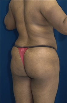 Buttock Implants Before Photo by Ricardo Rodriguez, MD; Lutherville-Timonium, MD - Case 27100