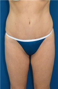 Tummy Tuck After Photo by Ricardo Rodriguez, MD; Lutherville-Timonium, MD - Case 27101