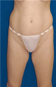 Tummy Tuck Before Photo by Ricardo Rodriguez, MD; Lutherville-Timonium, MD - Case 27101