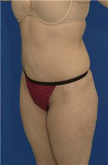 Tummy Tuck After Photo by Ricardo Rodriguez, MD; Lutherville-Timonium, MD - Case 27102