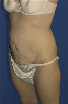 Tummy Tuck Before Photo by Ricardo Rodriguez, MD; Lutherville-Timonium, MD - Case 27102