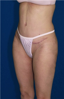 Tummy Tuck After Photo by Ricardo Rodriguez, MD; Lutherville-Timonium, MD - Case 27103
