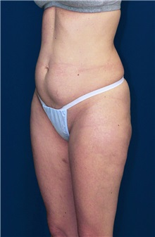 Tummy Tuck Before Photo by Ricardo Rodriguez, MD; Lutherville-Timonium, MD - Case 27103